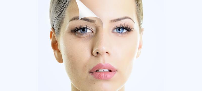 Sculptra: O Melhor Tratamento Para Flacidez Facial