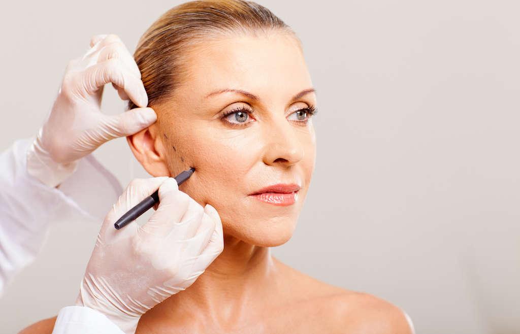 Fios de sustentação facial: rejuvenesça de maneira natural!