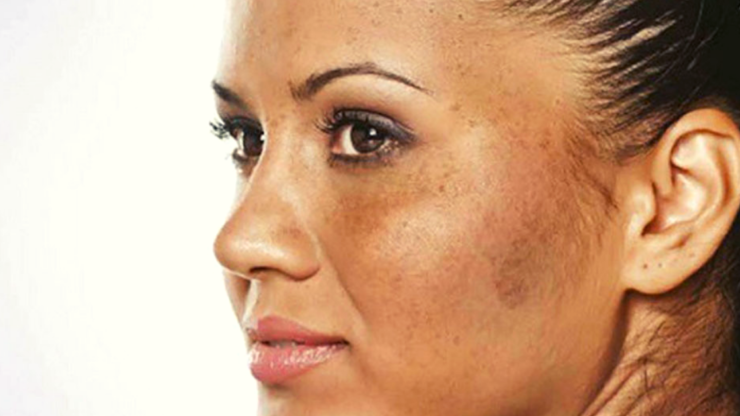 Como tirar manchas do rosto e rejuvenescer?