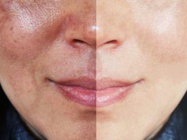 Melasma no rosto: as 8 respostas definitivas