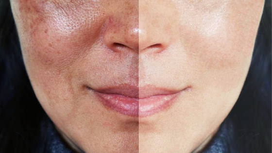 Melasma no rosto: as 8 respostas definitivas